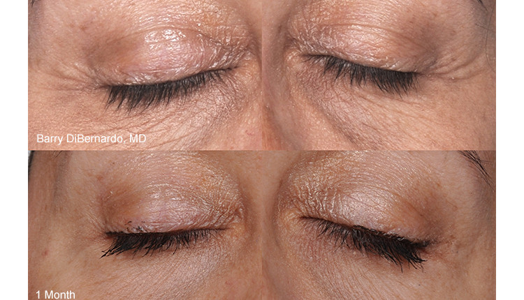 Before and After Eye Treatment at New Vitality Medical