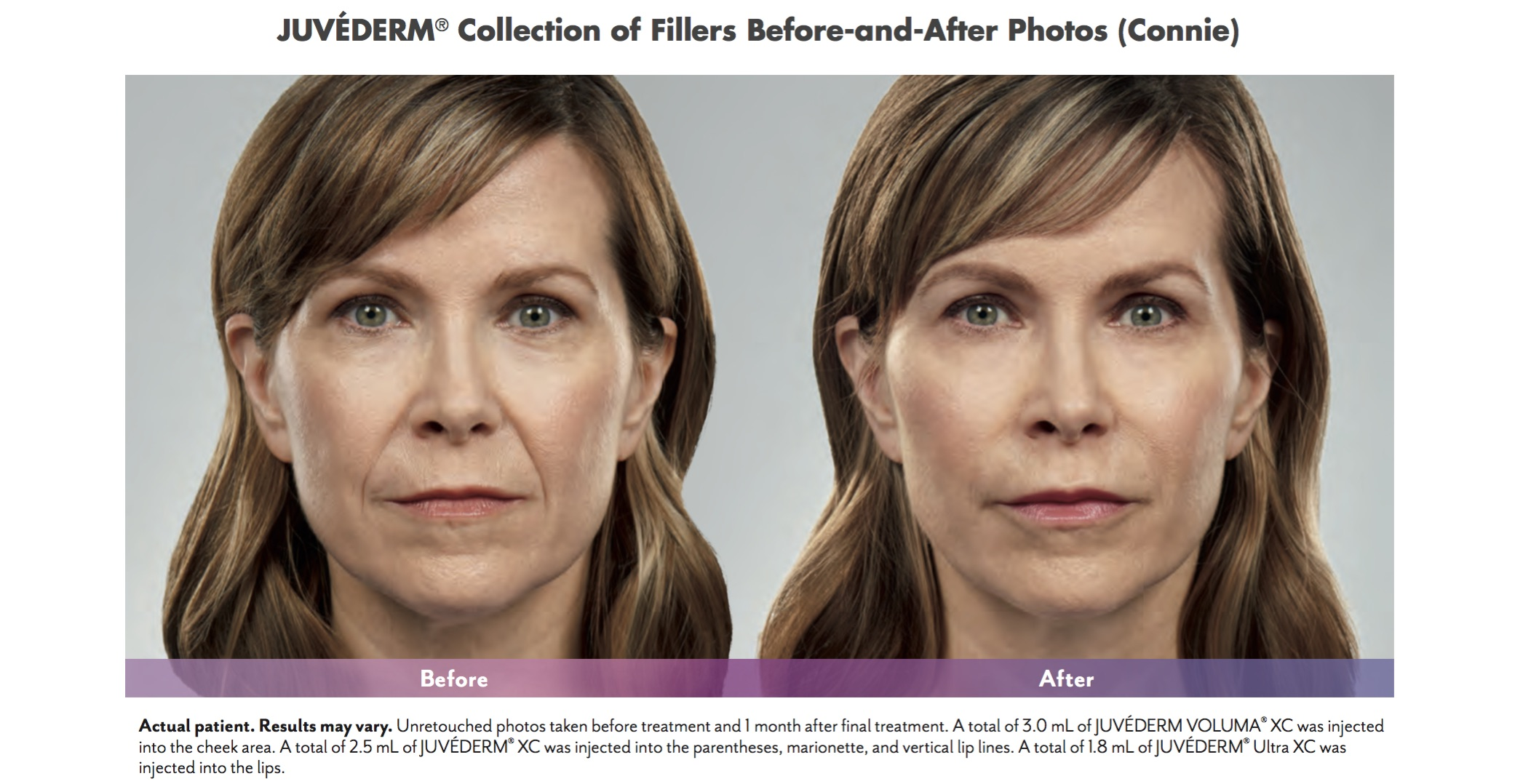 Before and After Juvederm Facial Fillers at New Vitality Medical