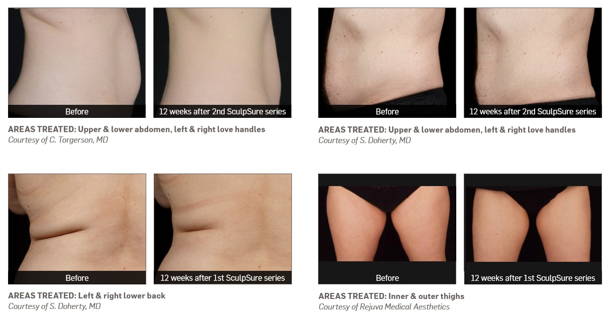 before and after sculpsure on thighs and back