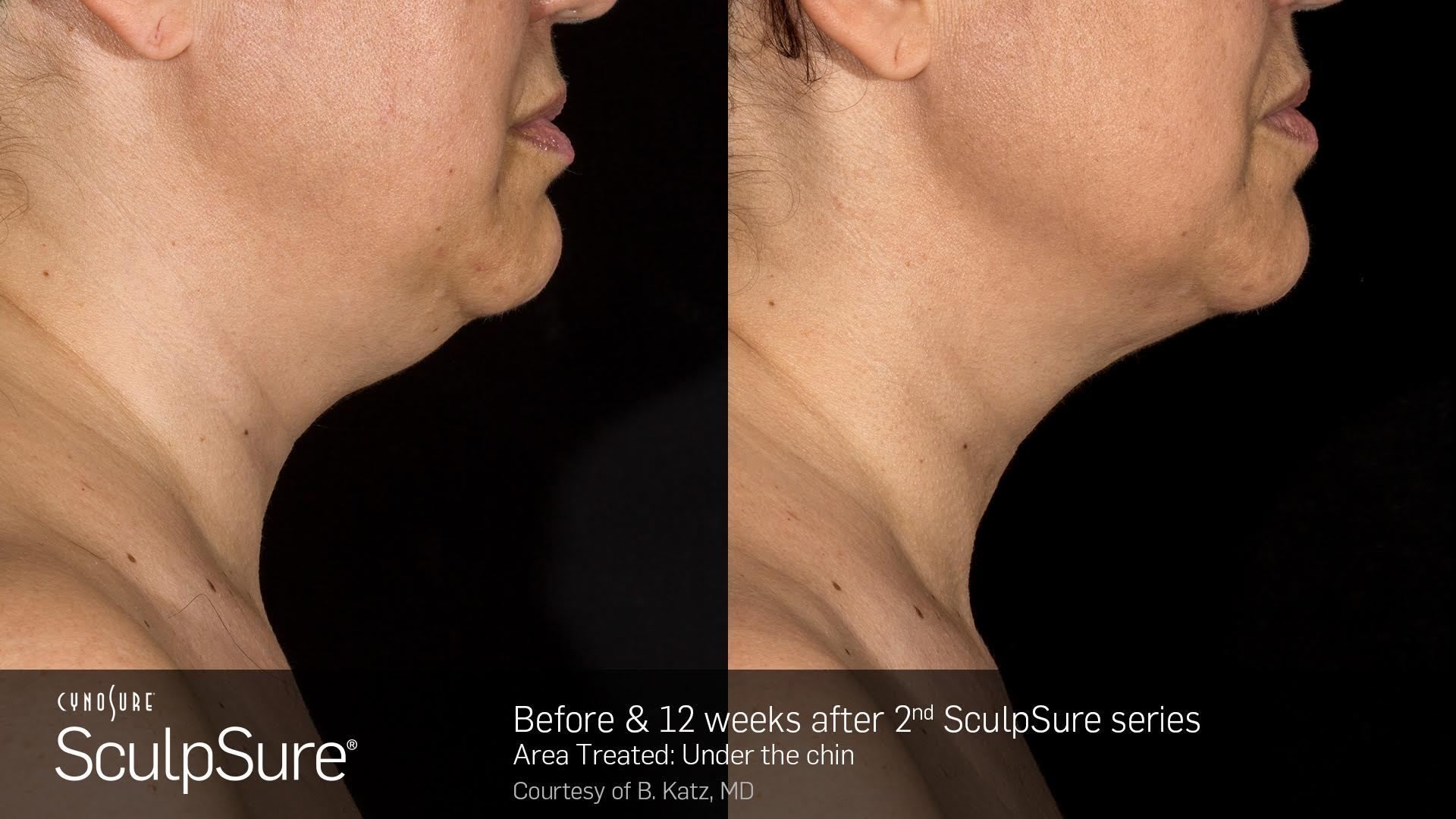 sculpsure before and after 12 weeks