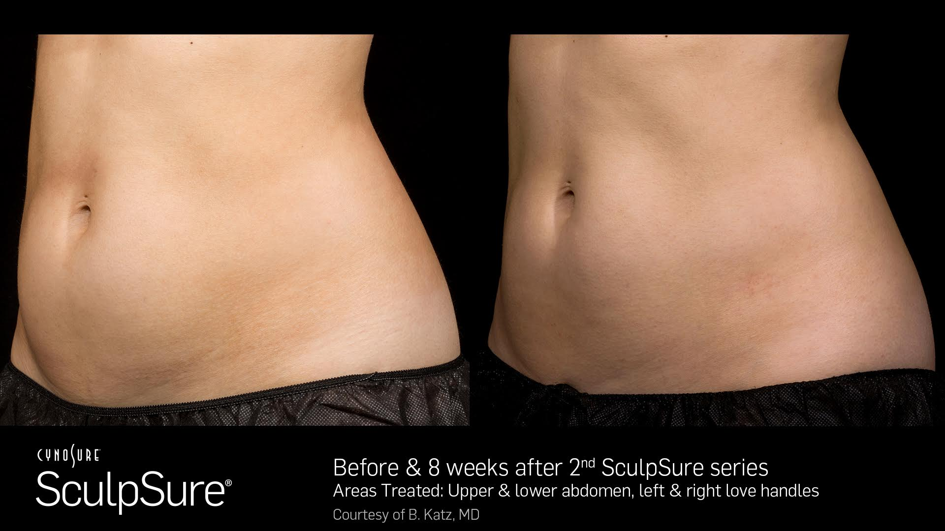 sculpsure body before and after 8 weeks