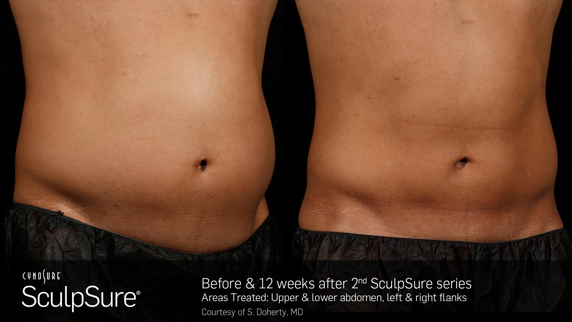 sculpsure mans body before and after 8 weeks