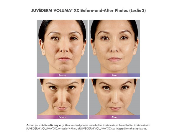 Juvederm Voluma Before and After Photos