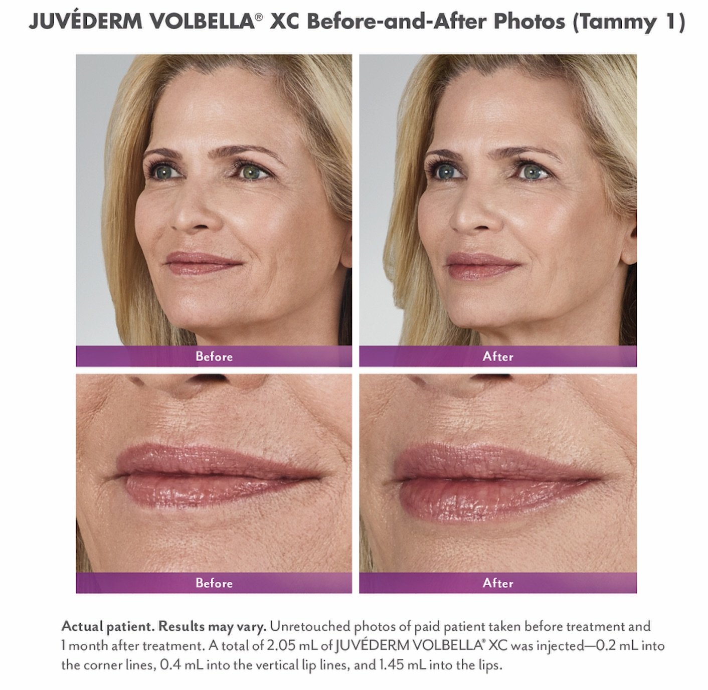Before and After Lip Fillers at New Vitality Medical