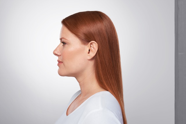Kybella Treatment Photo1