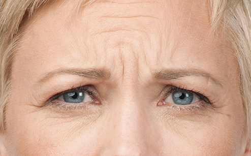 woman's forehead before botox injections